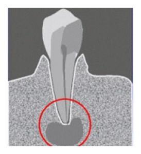 lechenie-zubov-3